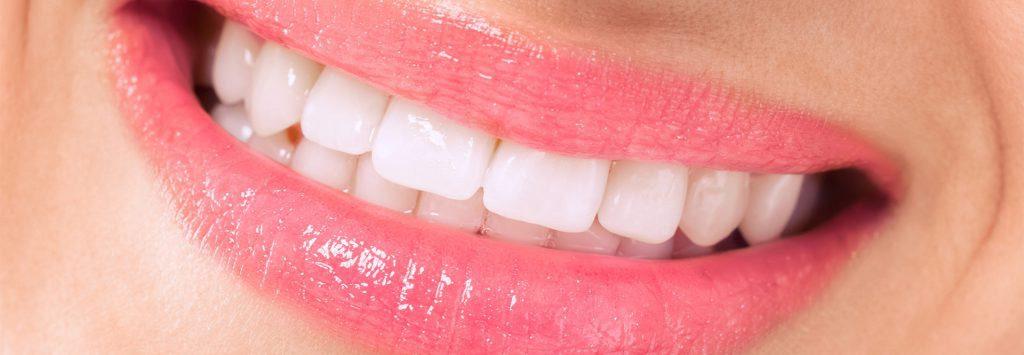 Zähne nach der Behandlung - weiß sauber gepflegt