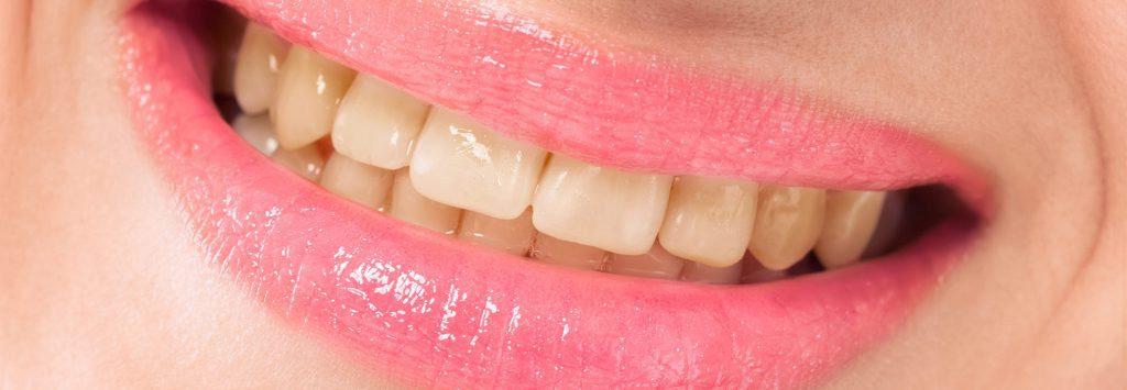 Zähne vor der Behandlung - geld